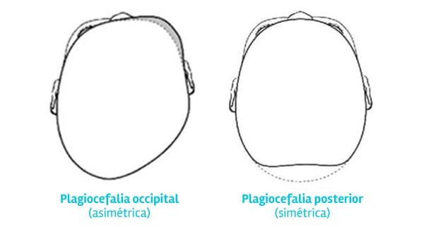 Tipos de Plagiocefalia
