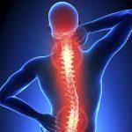 Cómo aliviar el dolor de espalda de forma sencilla