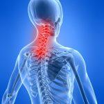 Dolor de cuello causas y cómo evitarlo