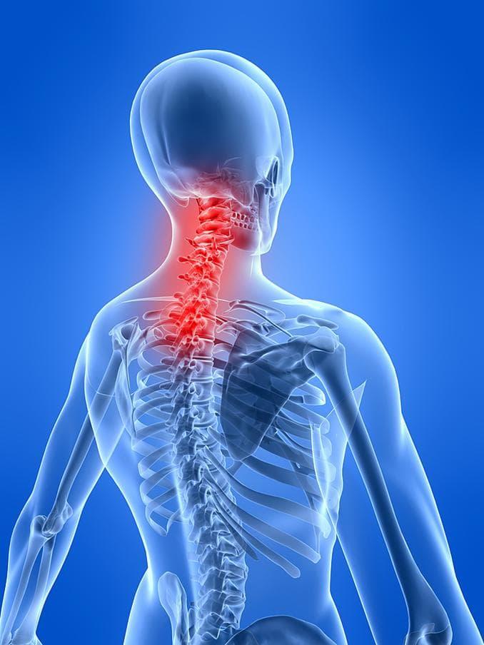 dolor de cuello causas